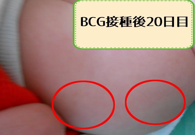 bcg20